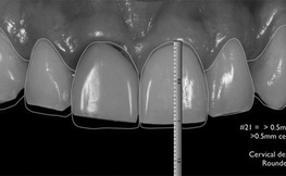 Digital Smile Design: A Tool for the Team to Treatment Plan Multidisciplinary Cases and to Communicate with the Patient.